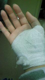 右手親指付け根負傷…